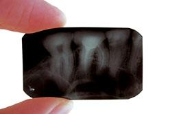 IKO-forskning-x-ray.jpg