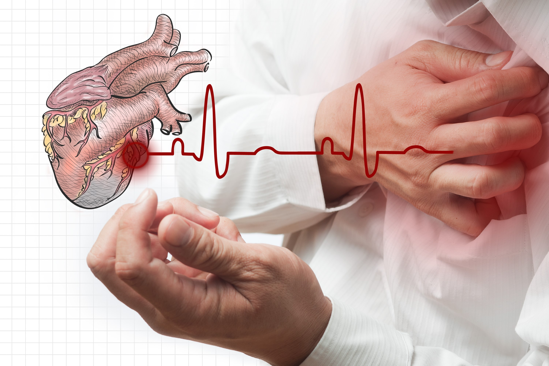 arterial.jpg